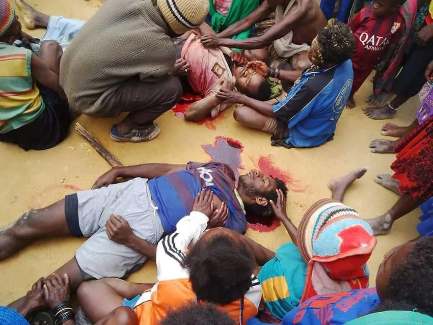 Pictures sent to the UN Human Rights of everyday people in West Papua being slaughtered by Indonesia asking the UN to act to help them.