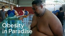 Obesity in Paradise
